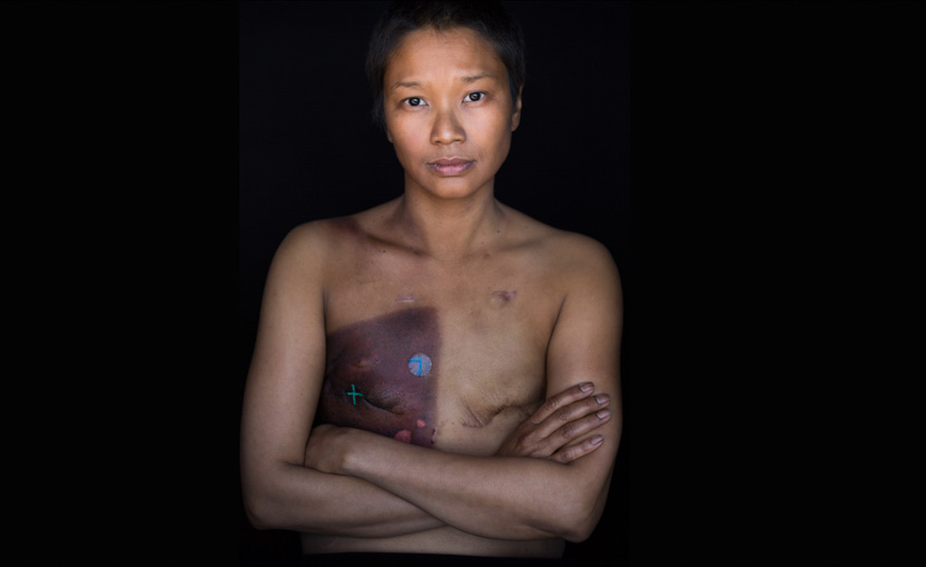 A female breast cancer patient photographed as part of Facing Chemo - reveals radiation burns and scars following a double mastectomy