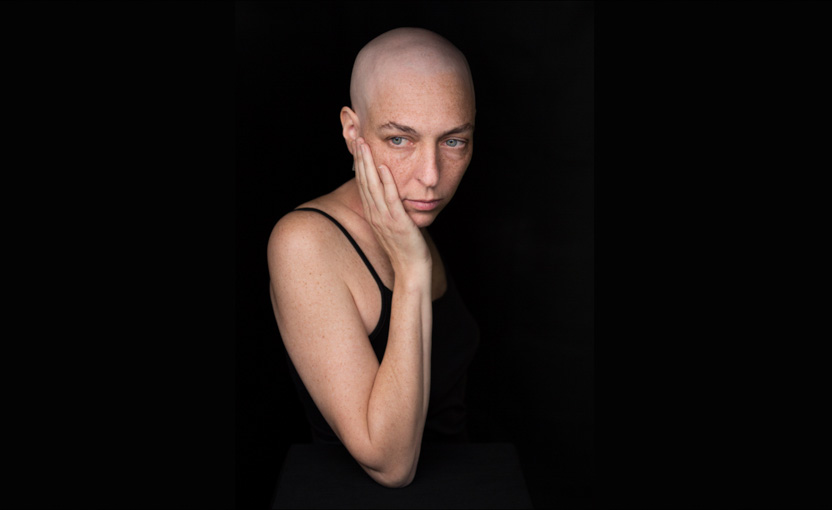 A Facing Chemo patient poses like a Brancusi sculpture for her portrait