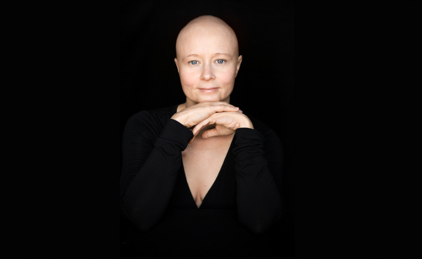 A young breast cancer patient undergoing chemotherapy; facing chemo project