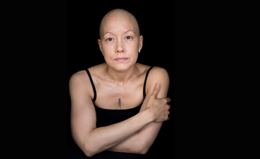Breast cancer patient - Facing Chemo project; chemotherapy