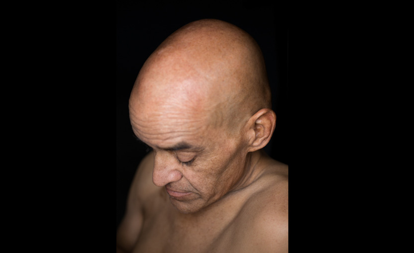 Male cancer patient undergoing chemotherapy; cancer battle; survivor; Bay Area photography, healthcare